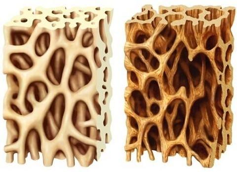 osteoporosis-bones